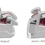BioPassive® - the passive version of the proven BioQuick®-brackets